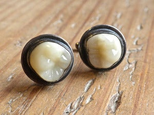 Image of MOLAR cufflinks