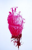 "Image of ""Bleeding Heart"" Pop Surrealism Glitter Screen Print Anatomical Lowbrow Valentines Art"